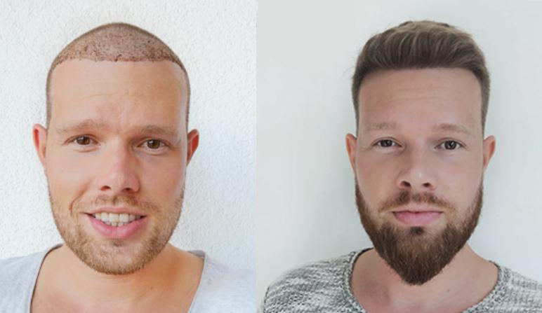 Antes y después del injerto capilar con Elithair.