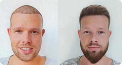 Patient vor und nach der Haartransplantation