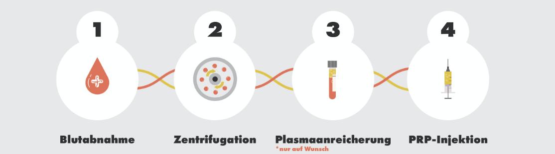 PRP Behandlung Infografik