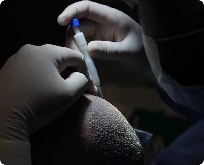 Nahaufnahme einer Haartransplantation in Berlin