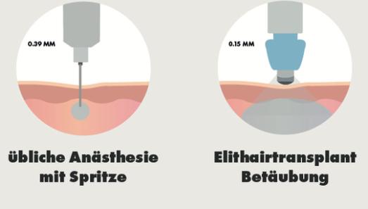 Elithairtransplant HT Betäubung