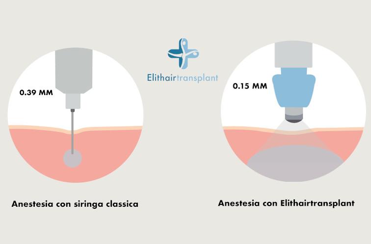 Elithairtransplant Anestesia