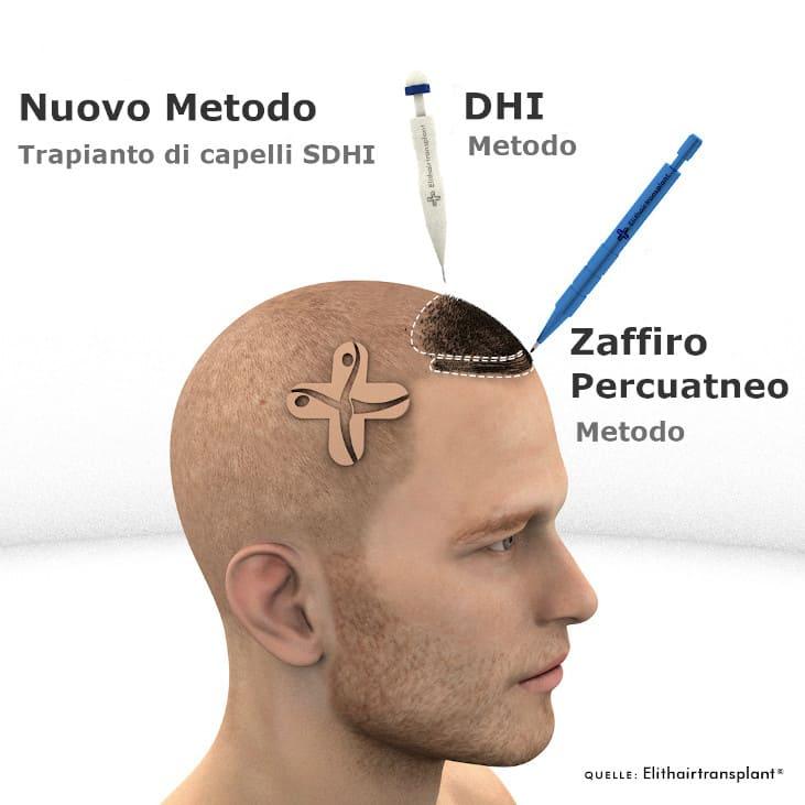 infografica trapianto di capelli DHI