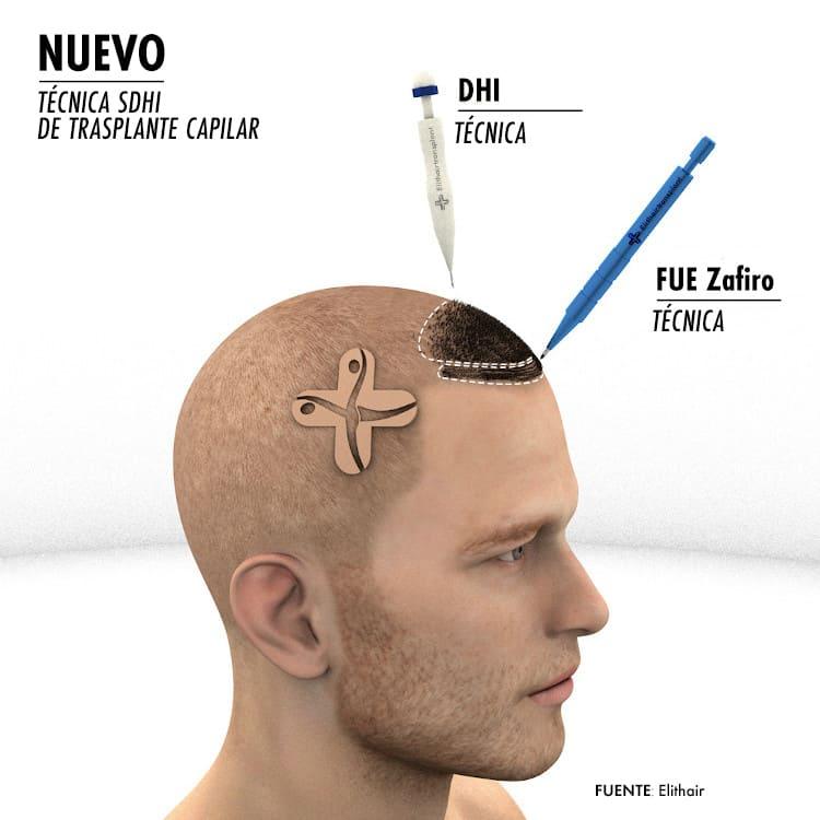 El método SDHI combina la técnica zafiro en la zona frontal y DHI en las áreas posteriores.