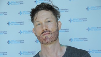 Christopher J in einem Video nach seiner Haartransplantation Erfahrung in der Türkei