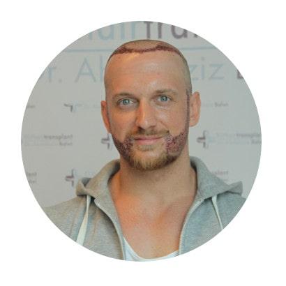 Oliver Zelosko berichtet seine Haartransplantation Erfahrung