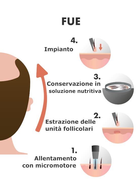 l'infografica del metodo FUE trapianto capelli
