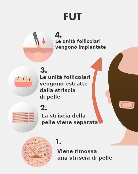 l'infografica del metodo FUT trapianto capelli