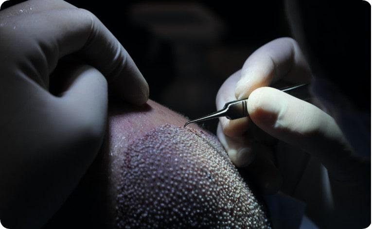 Une greffe de cheveux FUE est moins invasive que la méthode FUT