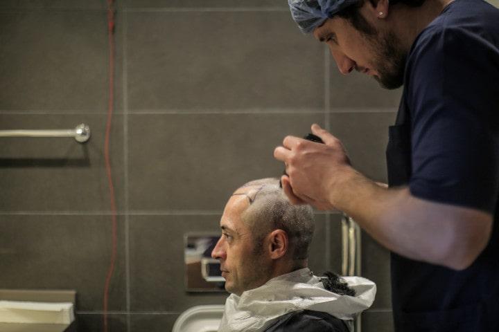 Une greffe FUE commence toujours par le rasage du crâne