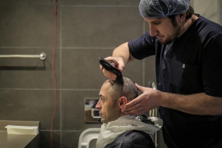 Especialista de Elithair rasurando el cabello de un paciente antes del injerto capilar FUE.
