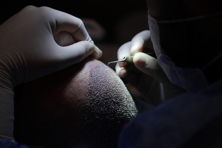 Un greffe de cheveux FUE est complétée dès que les greffons ont tous étés insérés dans la zone donneuse