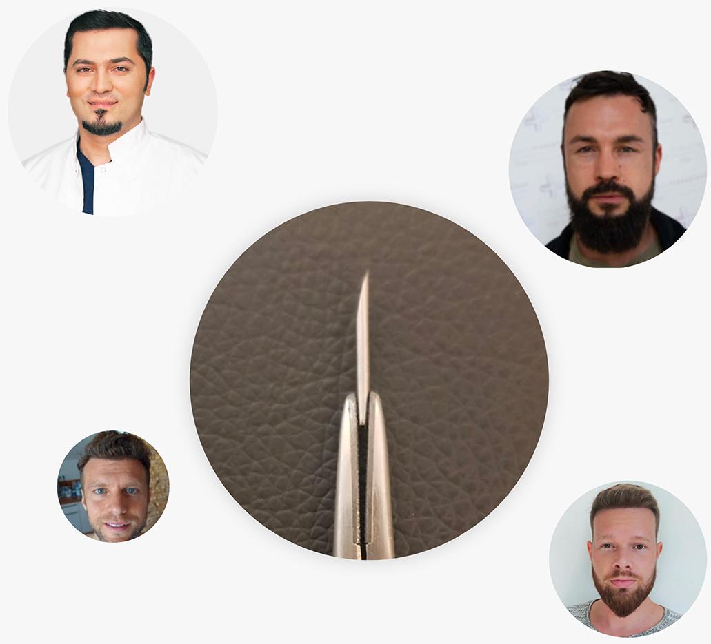 La greffe de cheveux percutanée est la solution optimale contre la chute des cheveux