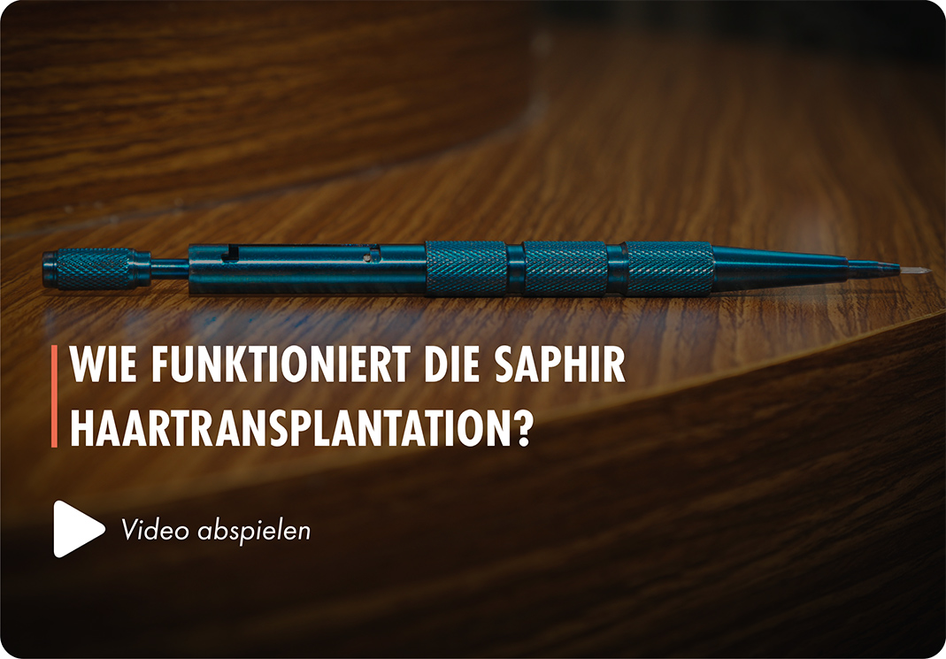 Barthaartransplantation in der Türkei bei Elithairtransplant