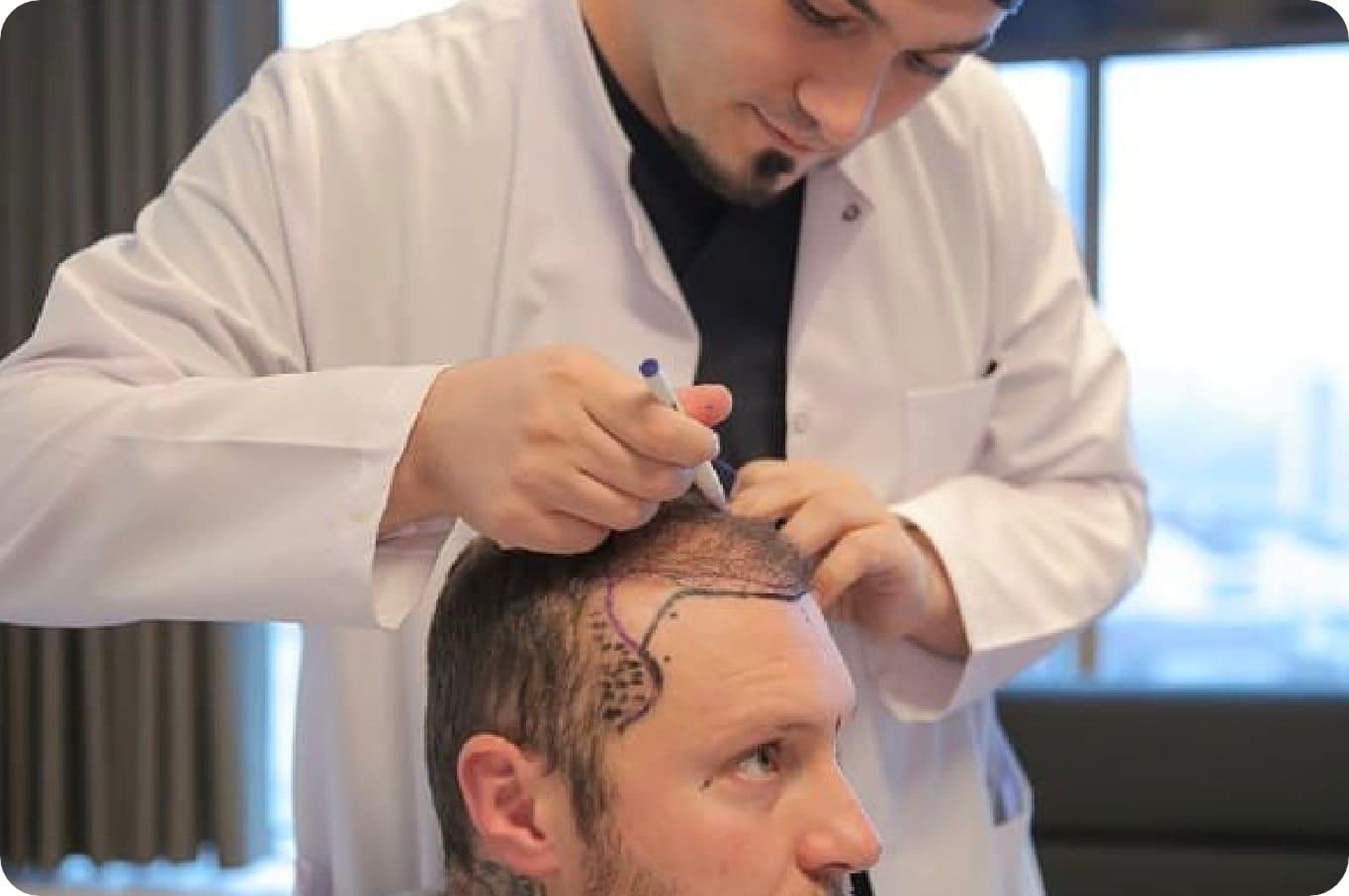 Dr. Balwi zeichnet einem Patienten die zu verpflanzenden Stellen für die Haarverpflanzung ein.