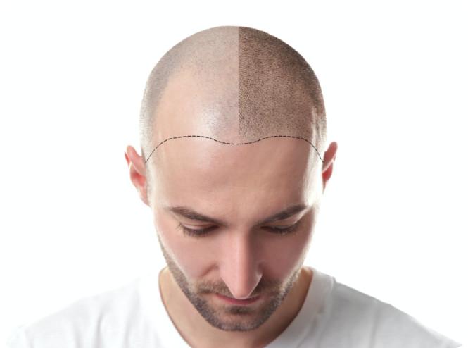 Die Haarpigmentierung lässt das Haar voller wirken.