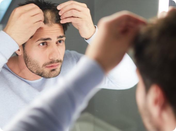 Junger Mann betrachtet seinen Haarverlust im Spiegel.