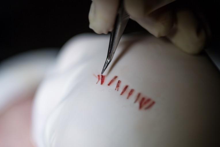 Extracción de los folículos capilares durante el injerto capilar.