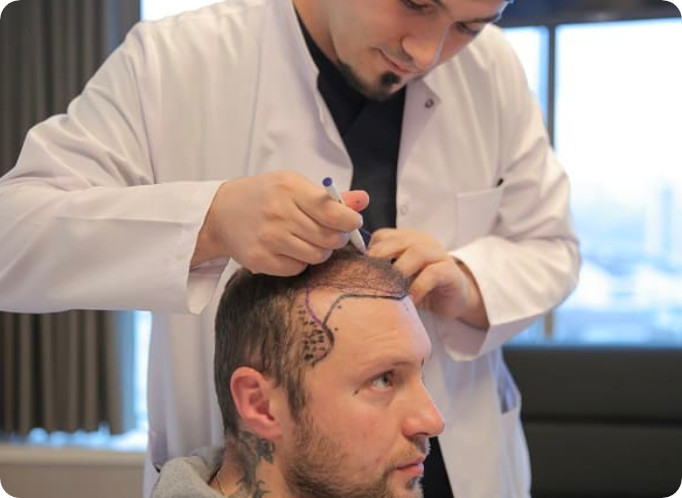 Dr. Balwi zeichnet die natürliche Haarlinie vor der Behandlung.