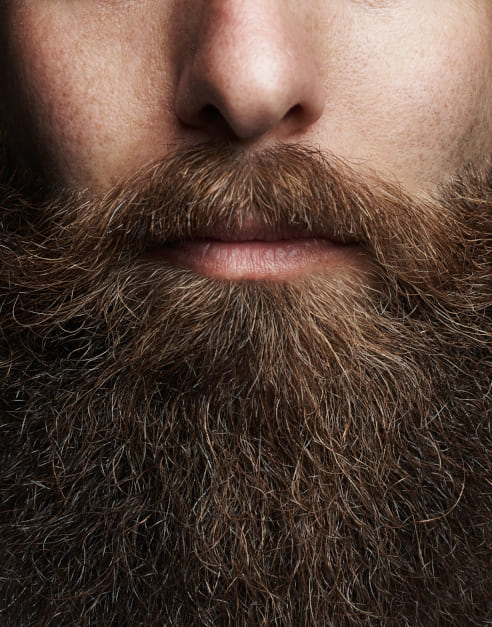 The beard transplant is the best solution to recover your lost facial hair hair!
