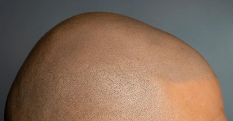 Nano Haarpigmentierung - Elithairtransplant
