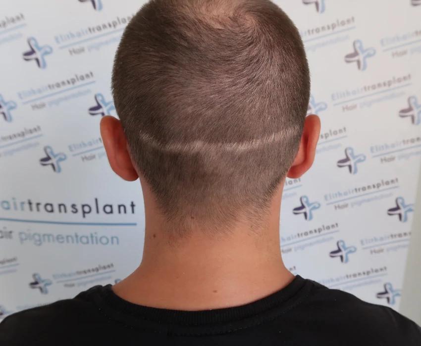 Korrekturen werden bei Elithairtransplant durchgeführt.