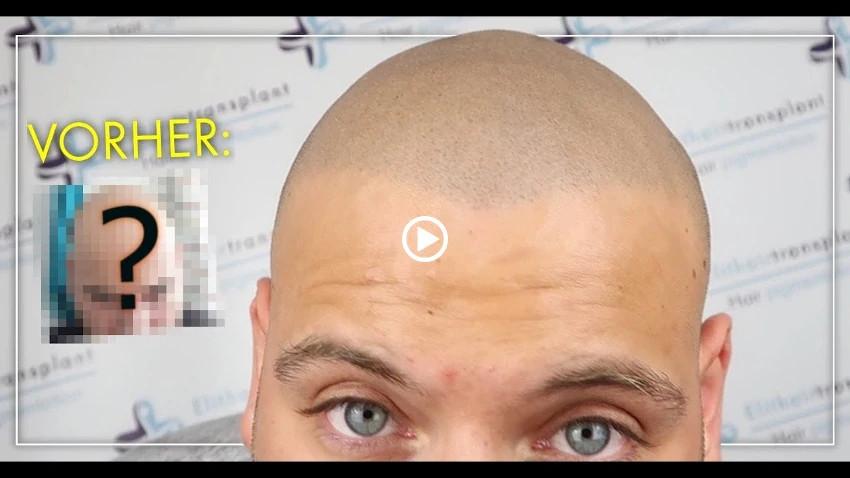 Haarpigmentierung Erfahrung