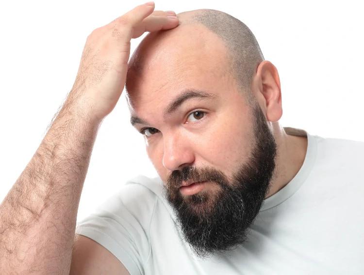 Haarpigmentierung bei Haarausfall