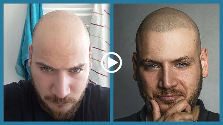 Haarpigmentierung Kosten