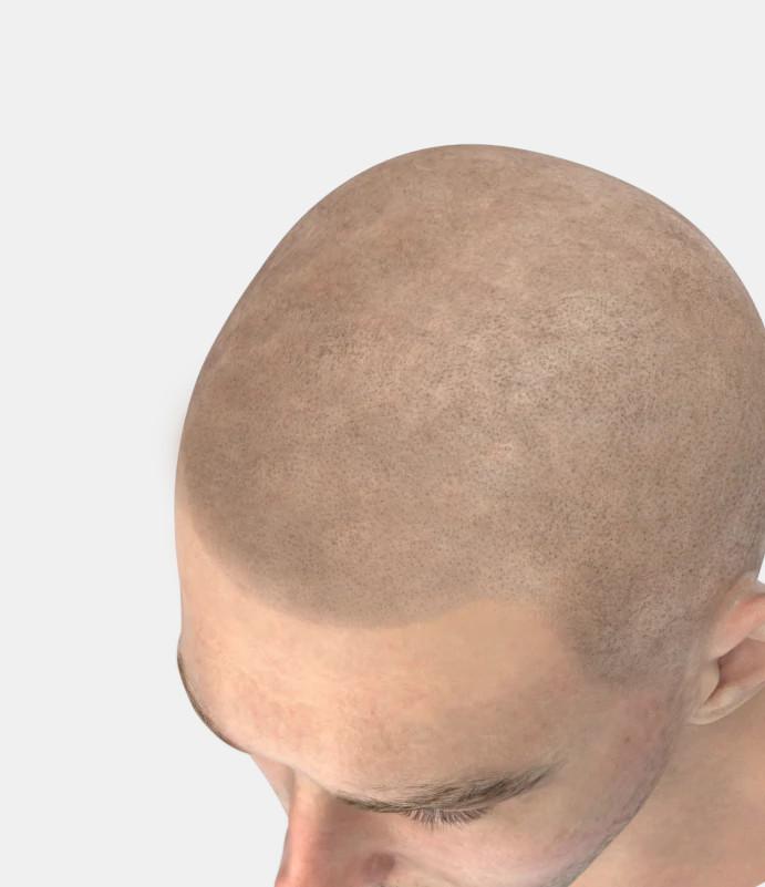 Haarsimulation Kosten bei Elithairtransplant