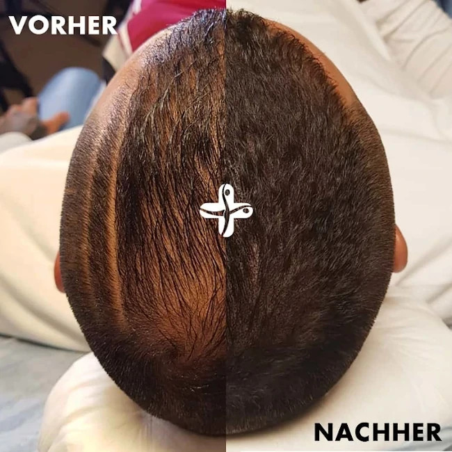 Haarpigmentierung Vorher Nachher