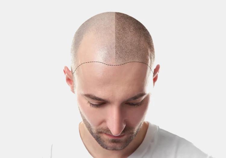 Haarpigmentierung Methode