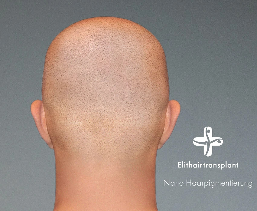 Neue Haarpigmentirung Methode bei Elithairtransplant