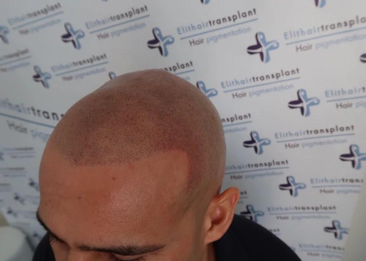 Mikro Haarpigmentierung in München