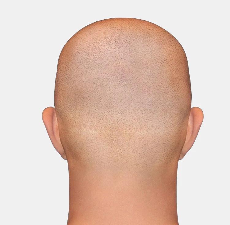 Narbenkorrektur mit der Haarpigmentierung