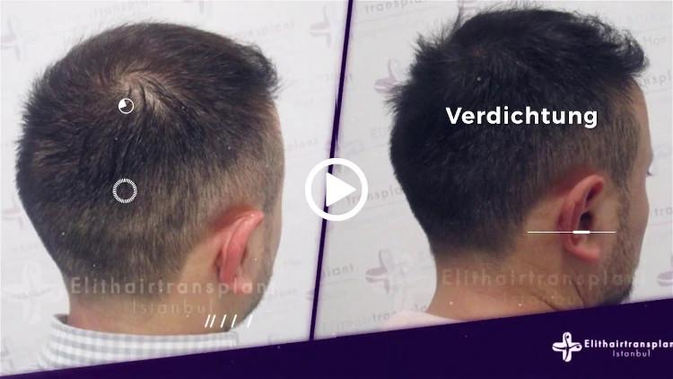 Nano Haarpigmentierung