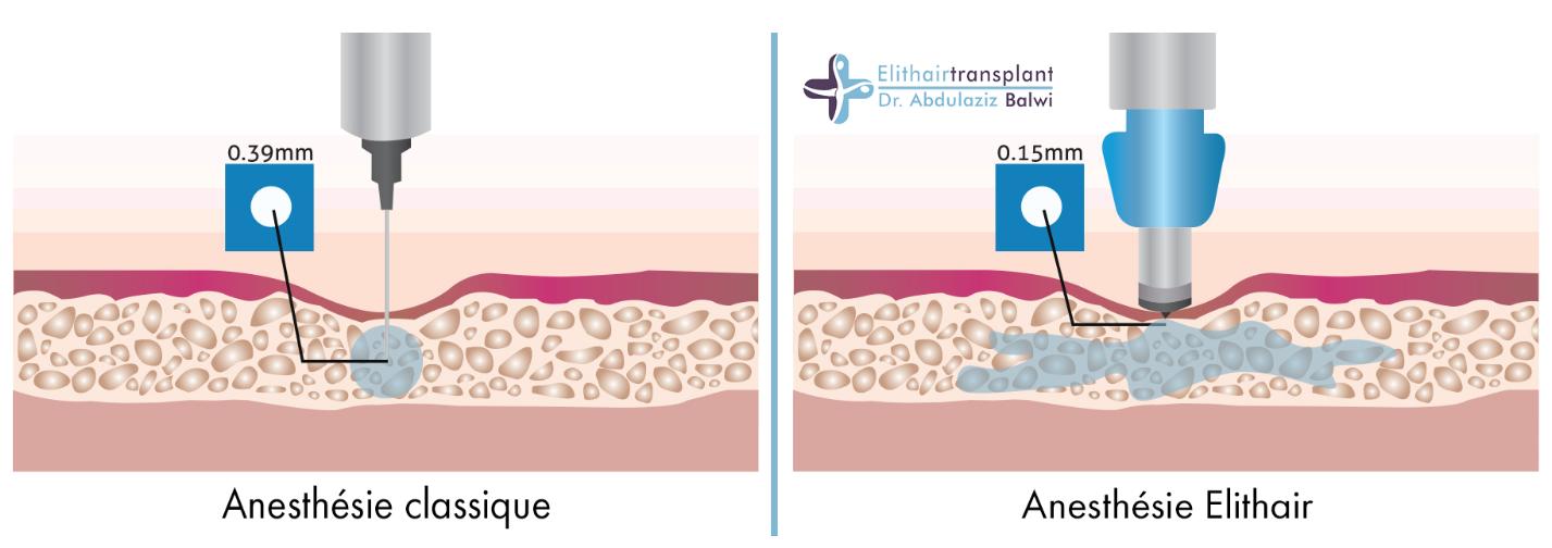Traitement de l'alopécie grâce à l'anesthésie indolore