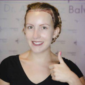 une alopécie féminine peut être traitée de manière efficace grâce aux implants cheveux
