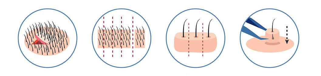 la methode fut est l'une des premieres techniques utilisee dans l'histoire de la greffe de cheveux