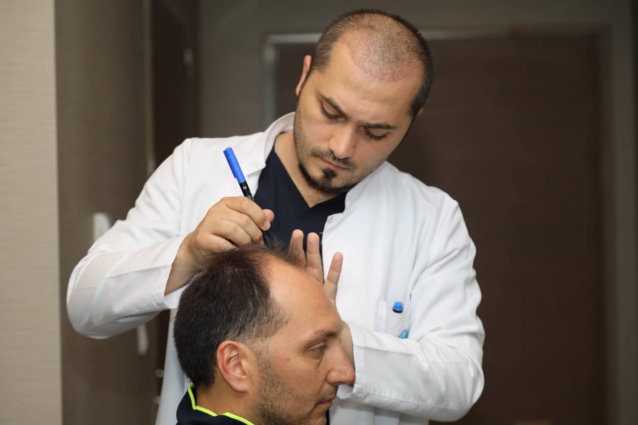 une ligne de cheveux mal déssinée est synonyme d'une greffe de cheveux ratée