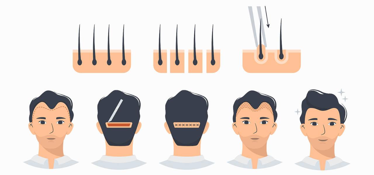 greffe de cheveux inconvenients et avantages de la technique FUT