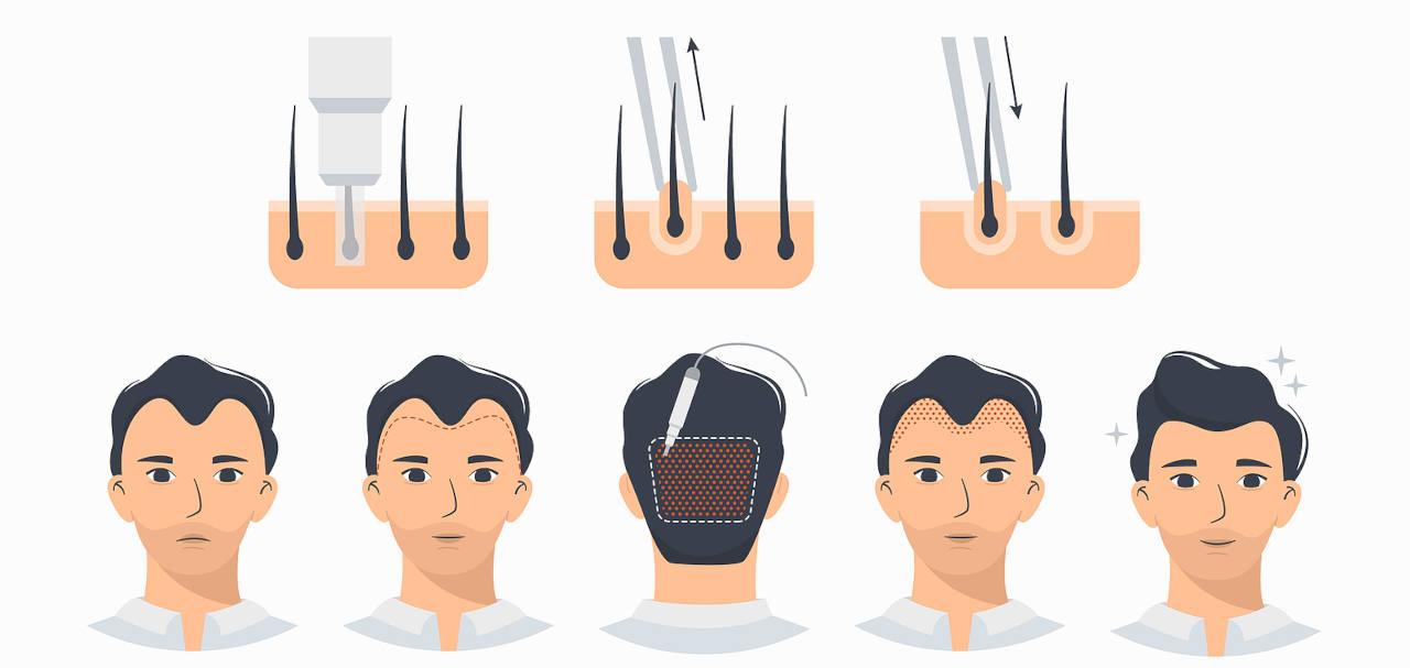 greffe de cheveux inconvenients et avantages de la technique FUE