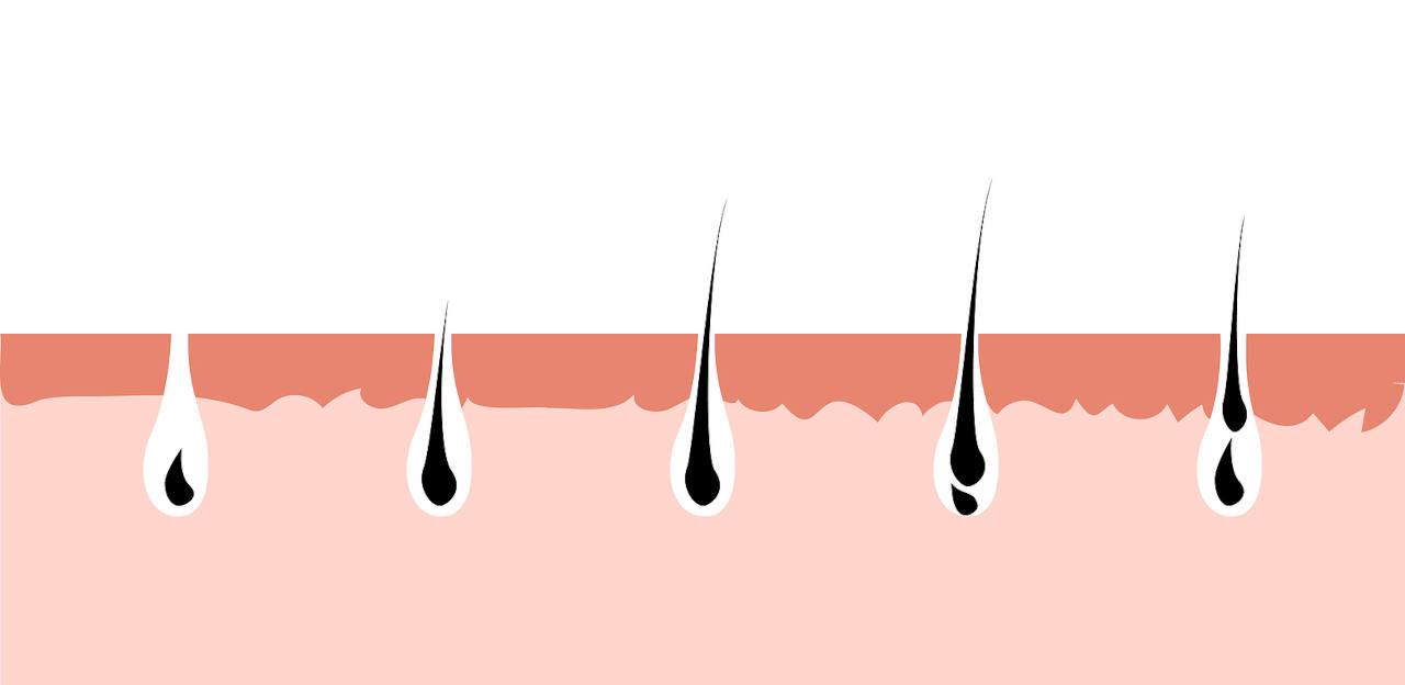 le cycle pilaire est un facteur determinant pour la repousse de vos cheveux apres une greffe