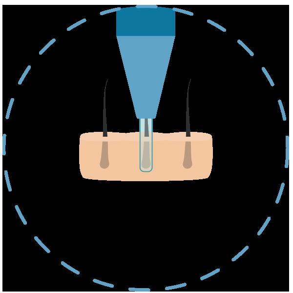 Méthode FUE - Desserrage avec micromoteur