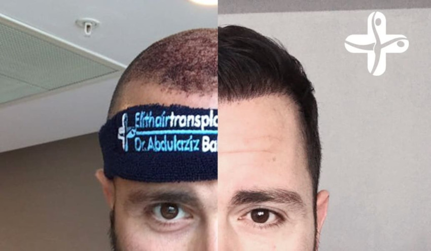 augmenter la densité des cheveux grâce à l'implant capillaire