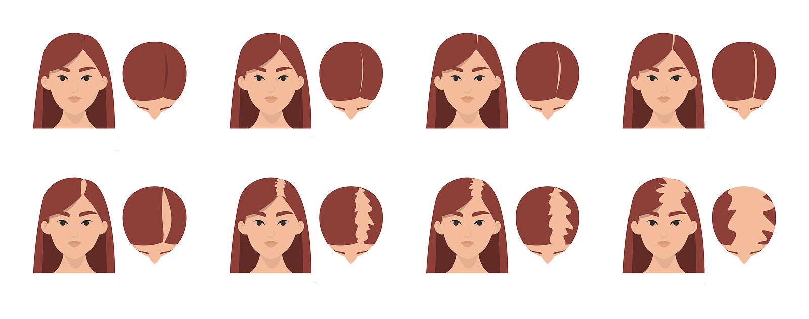 la greffe de cheveux est le seul traitement permanent contre la calvitie feminine