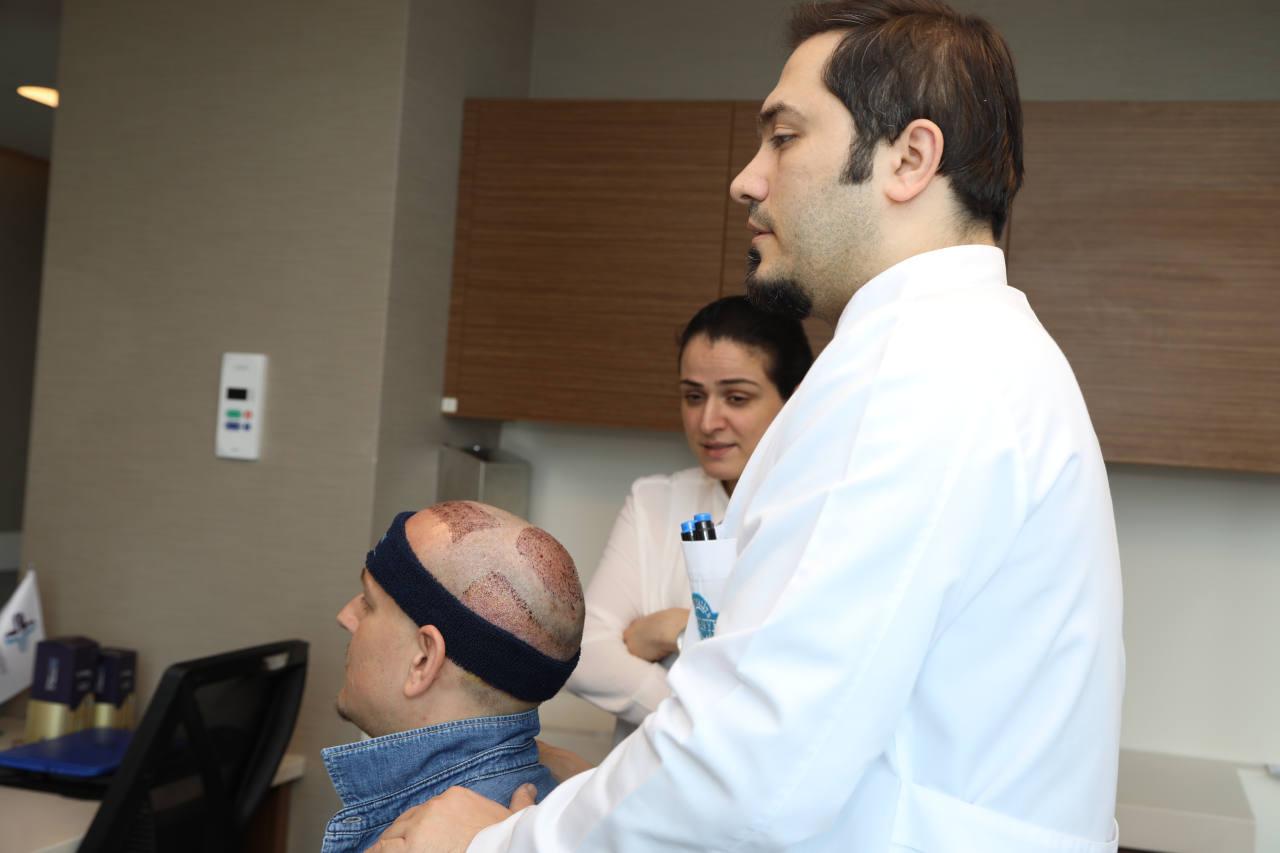 il est important de savoir quelle technique utiliser avant une greffe de cheveux