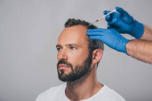 greffe de cheveux artificiels