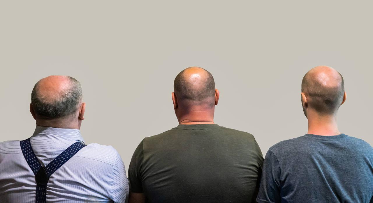 les poils du corps sont utilisés en cas d'alopécie avancée