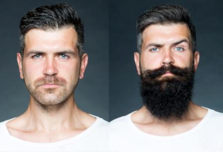 greffe de barbe résultat